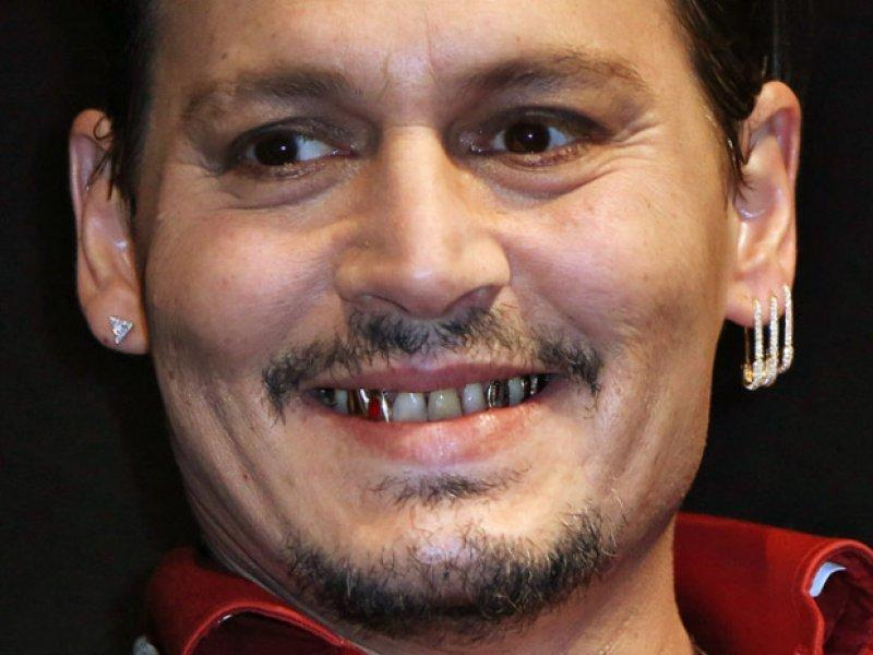 Hollywood Celebrities With Really Bad Teeth