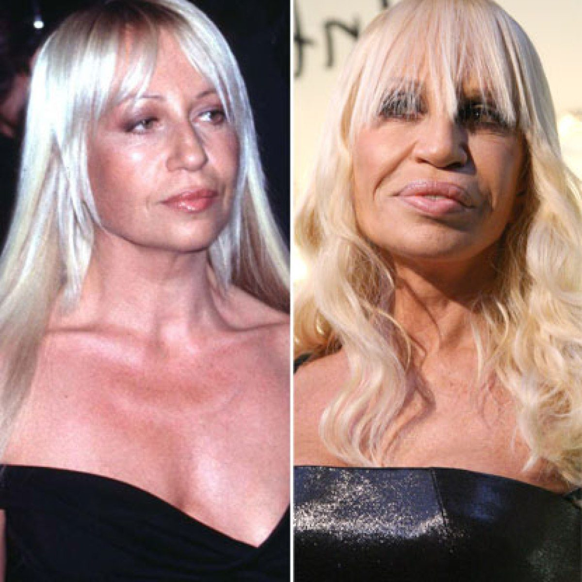 10 epic celebrity plastic surgery disasters